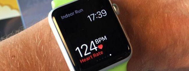 Apple Watch allunga la vita ad una donna con Fibrillazione Atriale