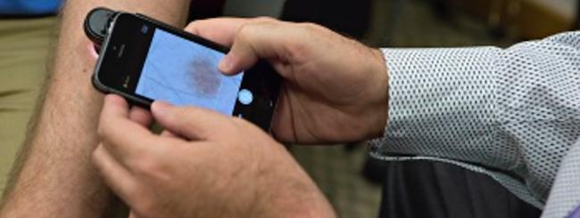 DermoScreen, l'app per iPhone che scopre i tumori ed è più precisa del vostro medico